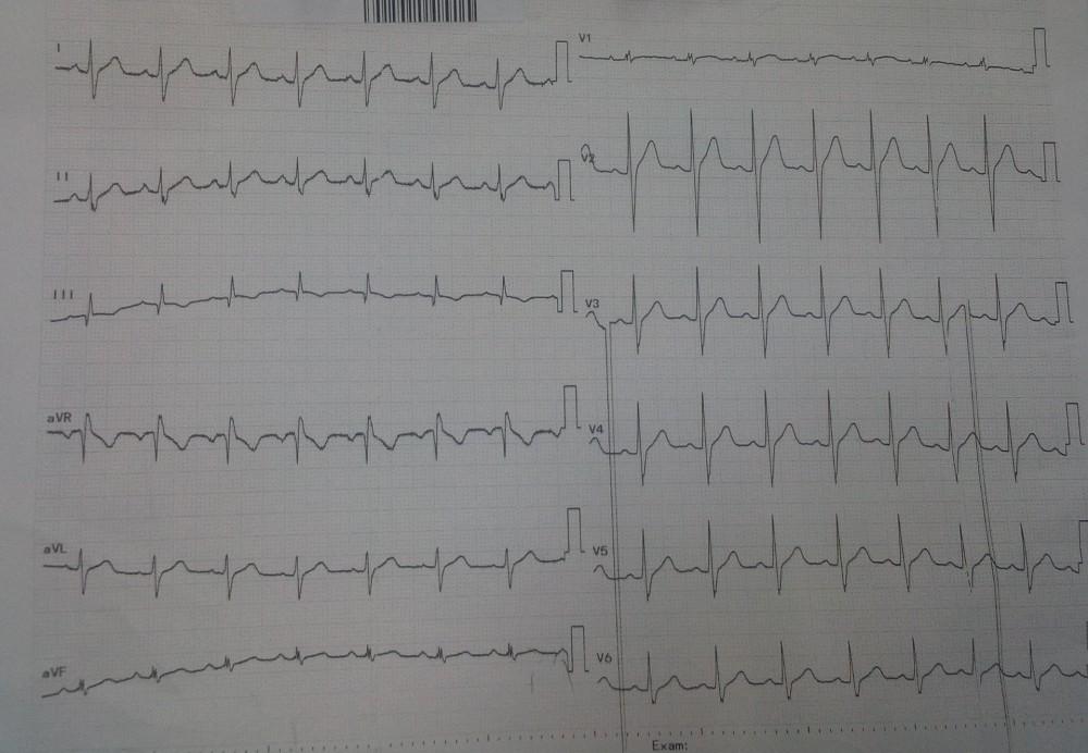 ECG Pulmonary Embolism