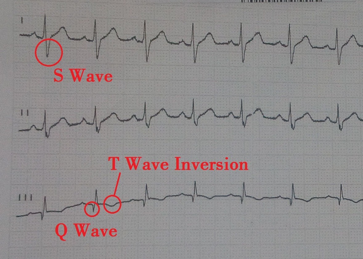 s1q3t3 pattern on ECG for pulmonary embolism