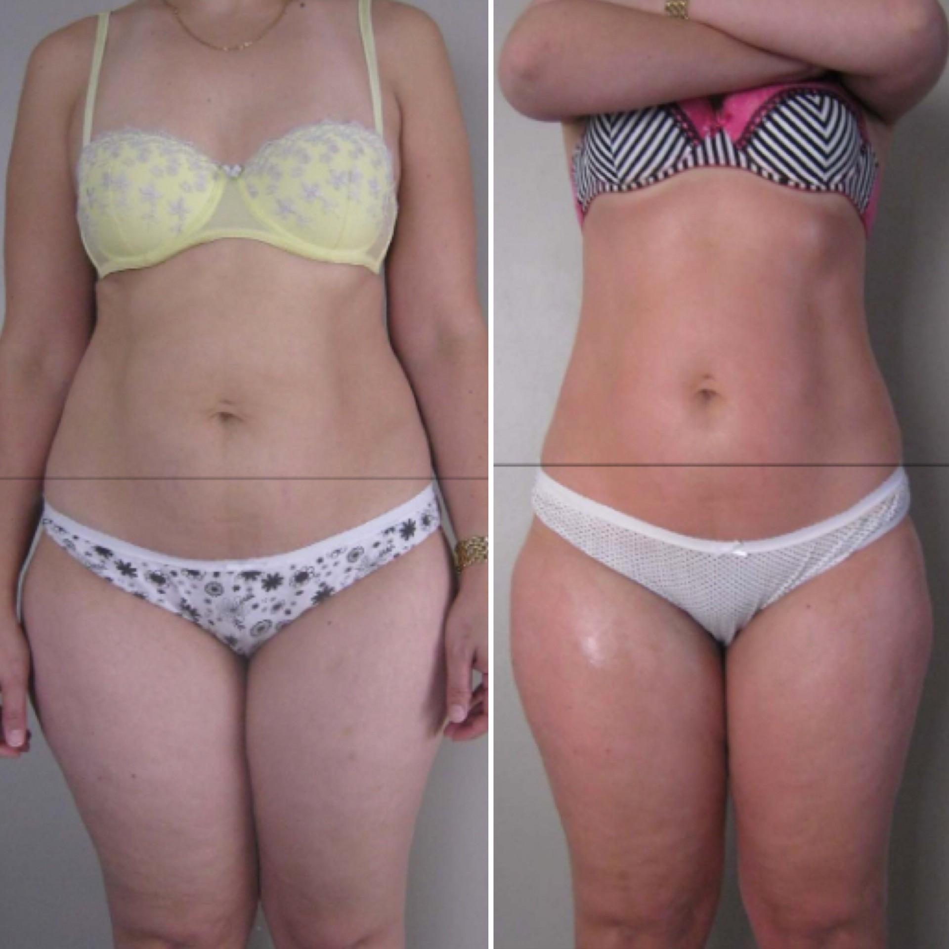 Cellulite Treatment Long Beach Ca