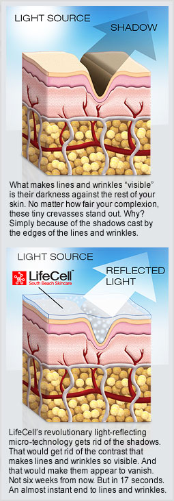 reason why Lifecell works