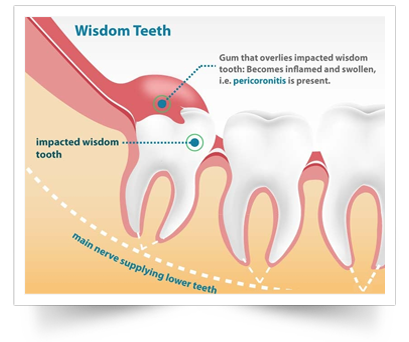 wisdom teeth shelbyville tn