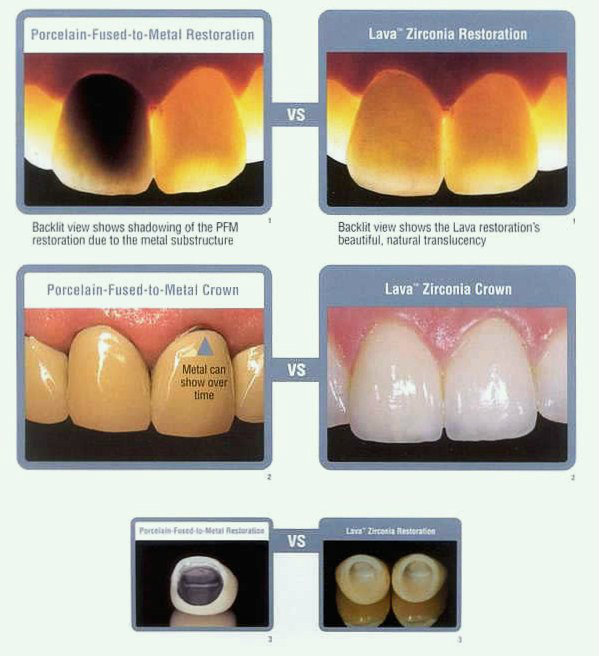 Riverside Dental Crowns